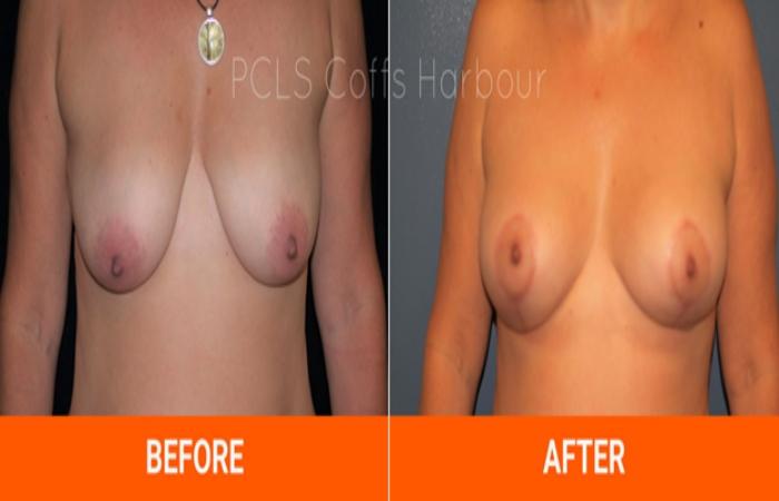 Breast lifting