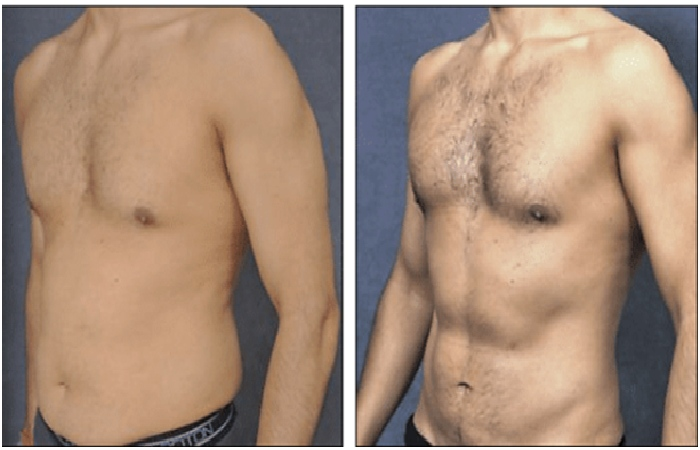 Correct your Imperfections - Liposuction
