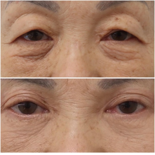Cosmetic Procedures With Minimal Invasion - blepharoplasty
